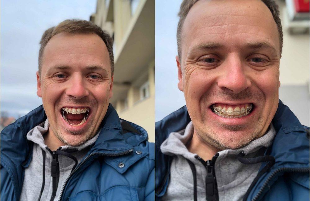 Zobni aparat - ortodontsko zdravljenje - gumice